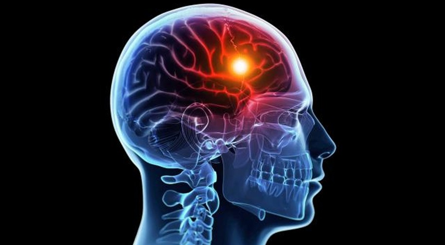 ER Doc 411: strokes and TIAs - what are they and what you need to know