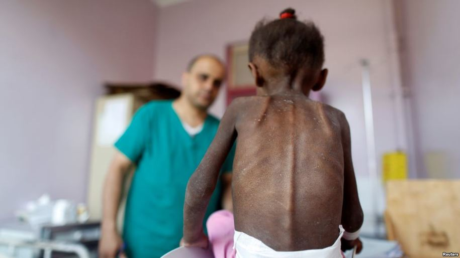 2f099895e4 White House Torpedoes UN Effort to Save 400,000 Yemeni Children from  Starvation