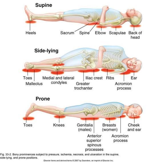 Pressure Ulcer Sites Diagram