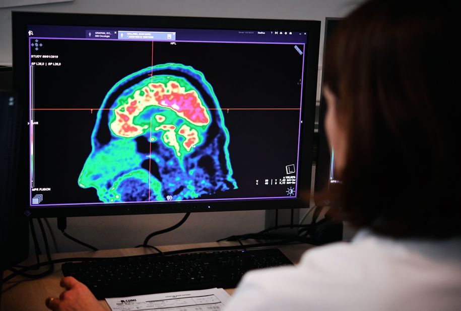 New research investigates intriguing approach to Alzheimer's—and potential that it can be reversed