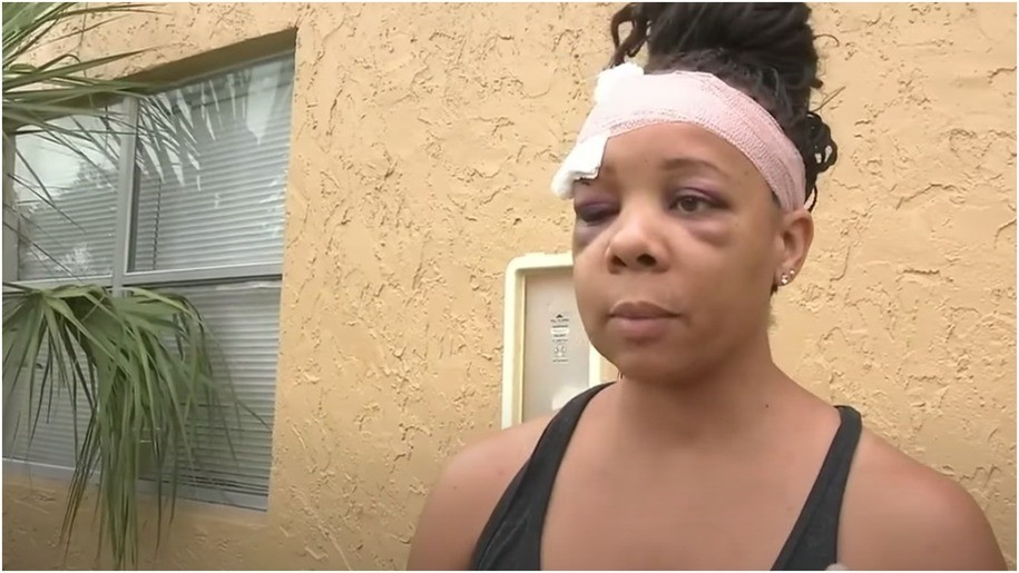 Black woman to detail how Florida cop fractured her eye socket at George Floyd protest